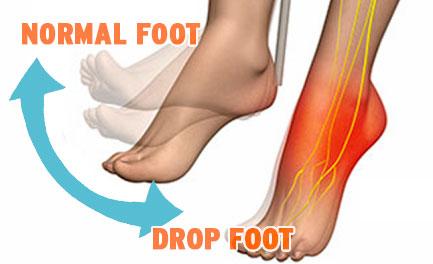 drop-foot